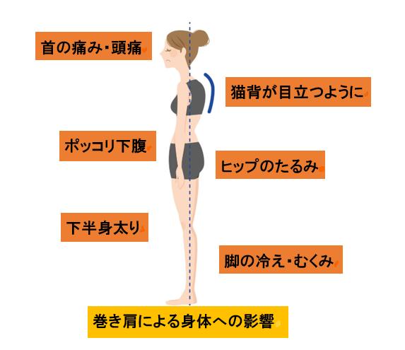 巻き肩とはどのような症状なのでしょうか?
